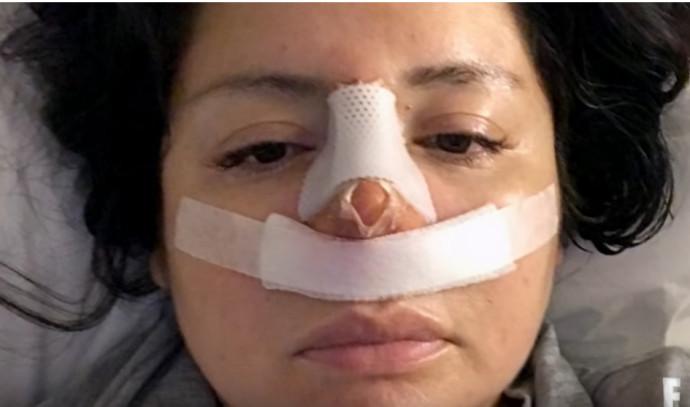 ביקשה שאיבת שומן, קיבלה ניתוח אף
